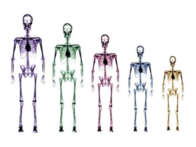 X-Ray xr34.jpg