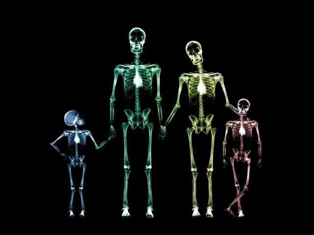 X-Ray xr35.jpg